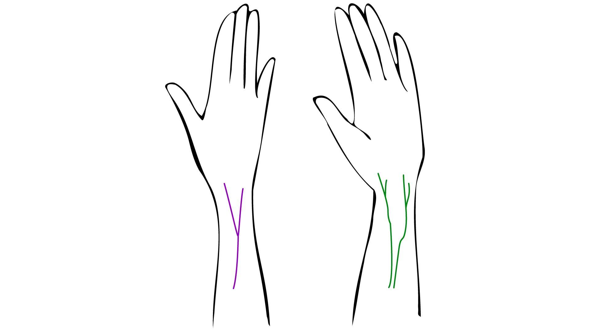 手首の血管の色は?